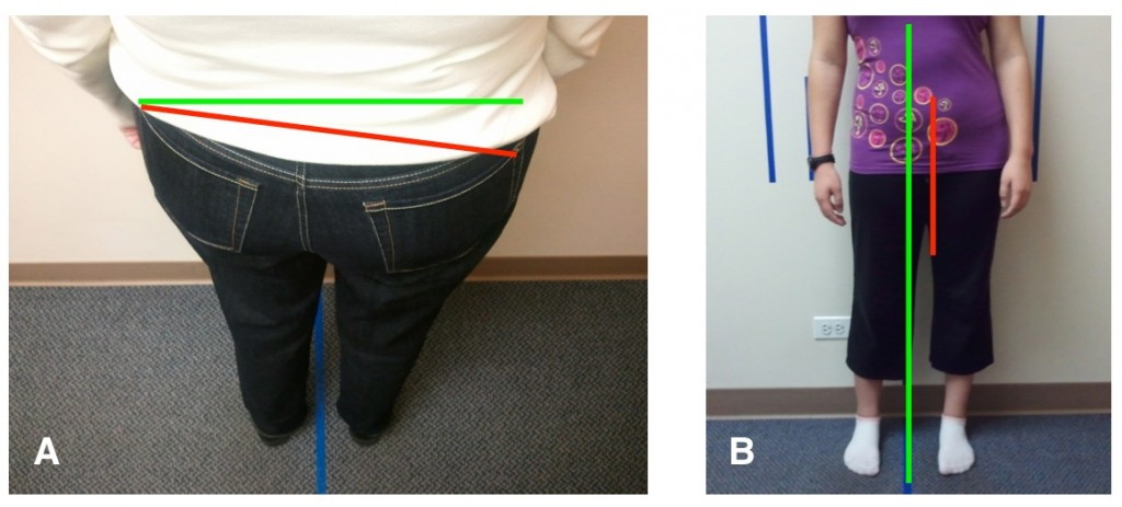 Posture distortions of the pelvis causing joint stress in the hips and knees
