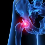 Here is Our Approach That is Eliminating Hip Pain