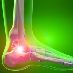 How to Finally Get Rid of Heel Pain