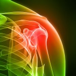 The Secret to Rotator Cuff Treatment and Rehabilitation