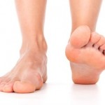 Here is What You Can Do to Help Bunions and Hammer Toes