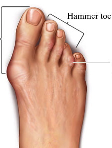 Foot with bunion and hammer toes