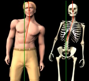 Musculoskeletal Misalignment Example of misaligned posture and spinal column due to macro-trauma or micro-trauma
