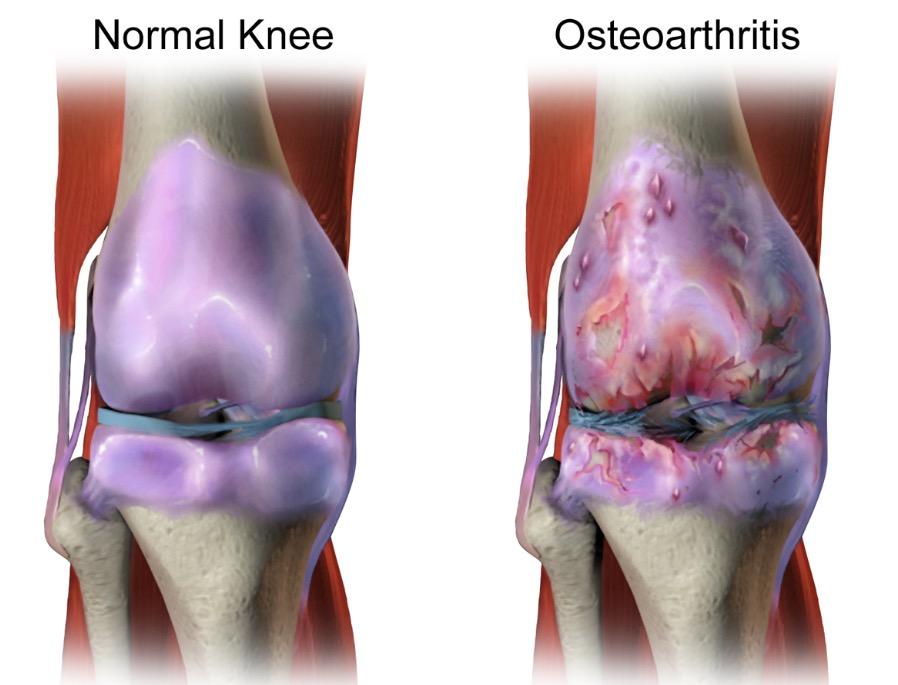 Knee Osteoarthritis Image